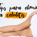 Tips para eliminar la celulitis
