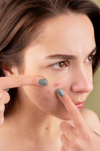 Como evitar el acné: